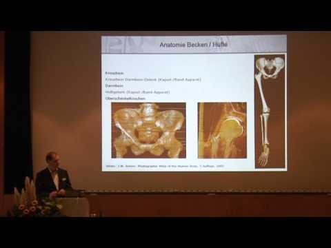 1/4:Dr. med. Peter H. Thaller: Beinlängendifferenz: Was kann die Dorn-Methode? Operationsbedarf?