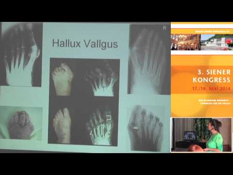 1/4: Doris Böhm: Optimale Beweglichkeit mit der DorSana-Methode - Hüftstellung und Hallux valgus