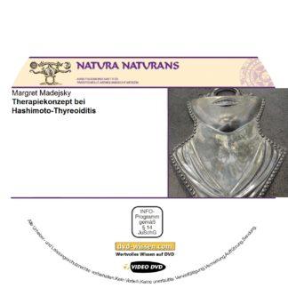 NNM17 V06 Hashimoto Thyreoiditis Therapiekonzepte 324x324 - Margret Madejsky: Therapiekonzepte bei Hashimoto-Thyreoditis