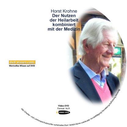 Horst Krohne: Der Nutzen der Heilarbeit kombiniert mit der Medizin 1 DVD-Wissen - Experten Know How