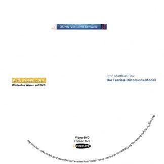 DornD16_V06-Fink-Faszien-Distorsions-Modell.jpg
